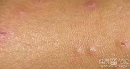 怎么治荨麻疹