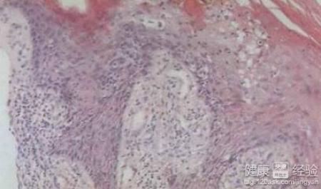 女性尖銳疣治療