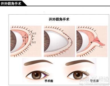 开眼角多久可以涂抹修复疤痕的药