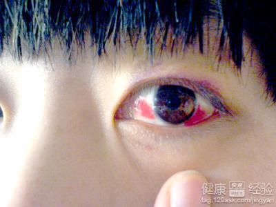 单只眼球充血_我得了结膜炎,白眼球充血很红,医生给我开了药请懂医的来看下