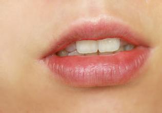 口角炎吃什么药