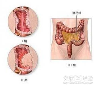 直肠癌的早期症状