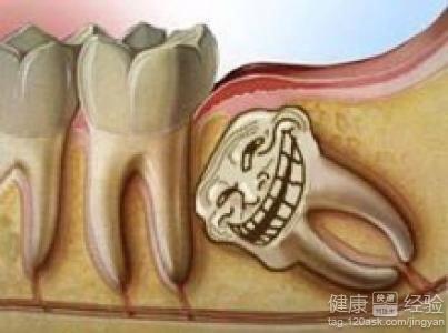 长智齿牙疼什么