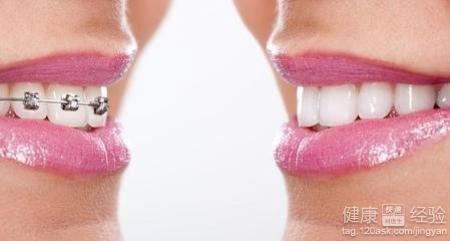 牙齿矫正的危害图片