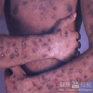 早期艾滋病脖子会起红点吗图片