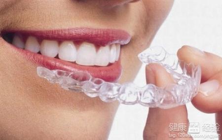 隐形牙齿矫正分类有哪些图片