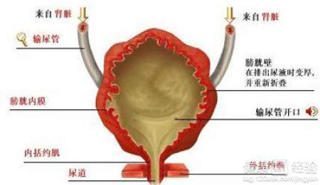 女性膀胱炎做什么检查