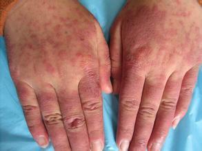 红斑狼疮早期症状