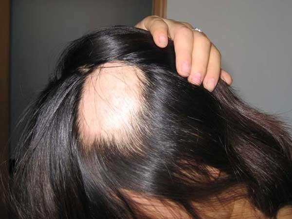 斑秃的原因及治疗