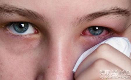 分泌物会增加,耳前淋巴结会出现肿大和压痛的症状的