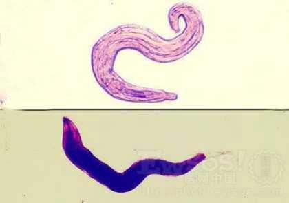 蛔虫病和蛲虫病的区别有哪些