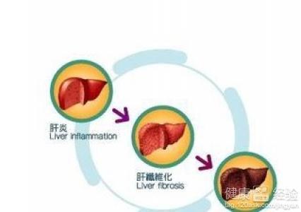 血吸虫病囹�a_血吸虫病有哪些防治措施