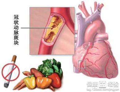 风湿性心脏病有什么症状