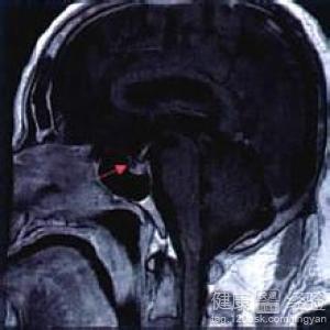 垂体微腺瘤手术风险