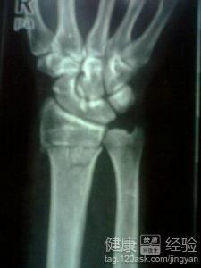 手腕骨折多久能痊愈