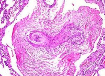 大叶性肺炎的并发症有哪些