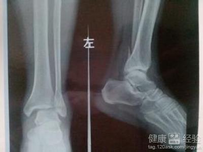 手舟骨骨折症状