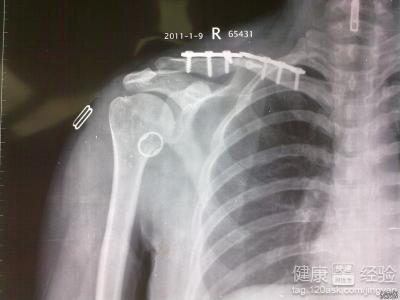骨折最初什么症状