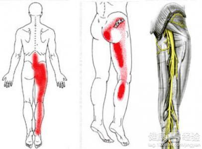 如何自然治疗坐骨神经痛