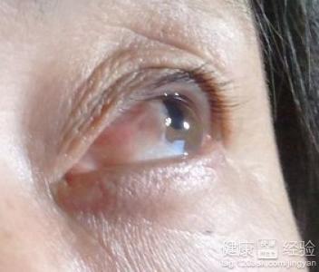 角膜炎结膜炎怎么治疗