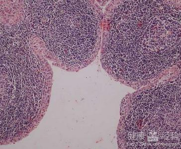 淋巴瘤是什么样子的