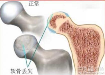 股骨颈骨折头下型如何治疗图片
