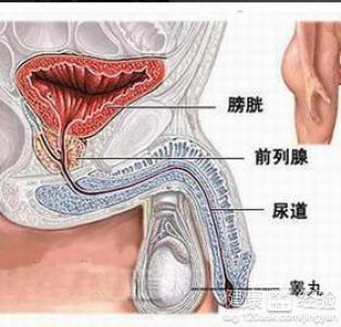 中药治疗男性附睾炎