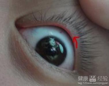 沙眼和角膜炎的区别