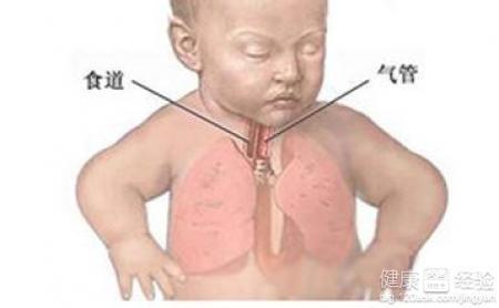 肺炎感冒症状有哪些症状图片