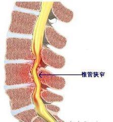 什么药治椎管狭窄