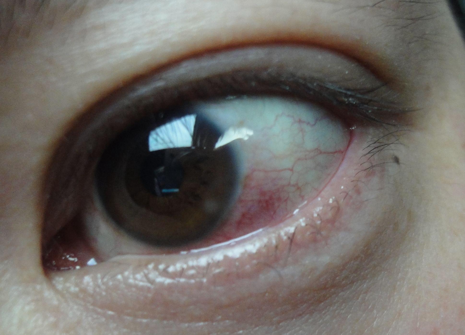 黑眼球上有个白点图片_下眼袋浮肿我深刻的经历过,有一天睡前我总是感觉非常口渴,所以一直
