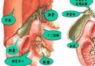 胆结石是怎么形成的