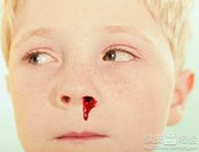 鼻子出血怎么回事