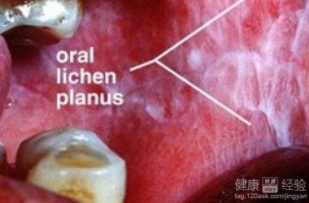 治疗老人口腔苔藓_老年人患口腔扁平苔藓怎样恢复快