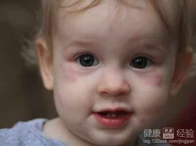寶寶蕁麻疹如何治療