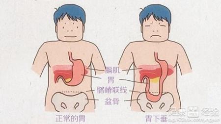 胃下垂的症状图片_胃下垂的治疗