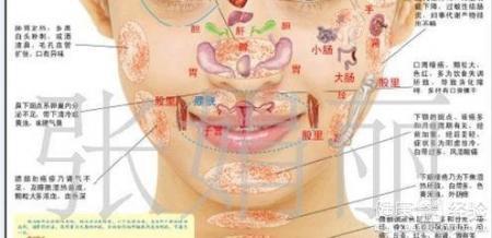 面部带状疱疹怎么治疗