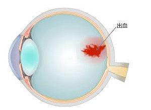 眼底出血的临床症状