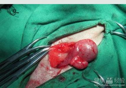 宝宝隐睾手术准备什么