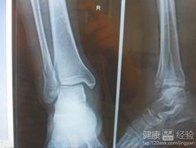 腓骨骨折一般是因為高臺跌落或者是骨折的類型,通常是螺旋形或者是鞋圖片