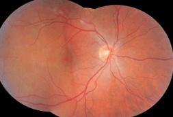 进行视网膜脱落手术前需检查眼底