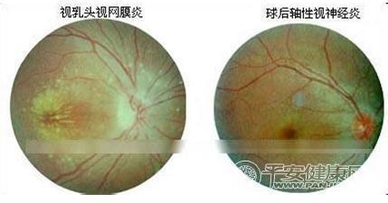 视神经炎的几种治疗方法