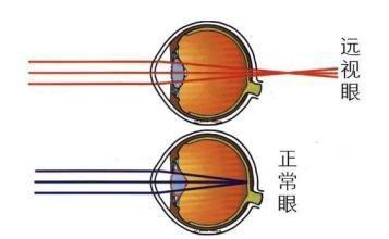 儿童远视眼治疗需注意什么?如何通过饮食治疗远视?