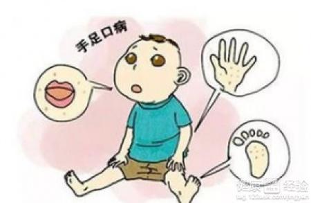 预防手足口病手抄报_如何预防手足口病
