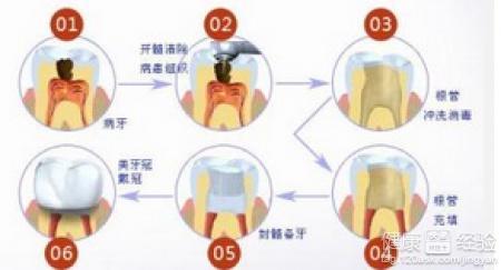com/:如何防治孩子乳牙龋齿