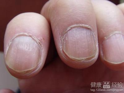 怎么治灰指甲最好及时治疗