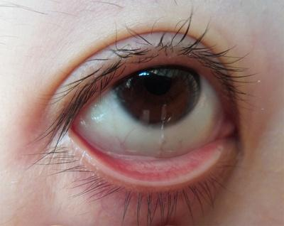 病毒性结膜炎患者在生活中应注意些什么?
