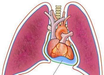 心包积液的外科治疗