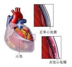 缩窄性心包炎的饮食4要点
