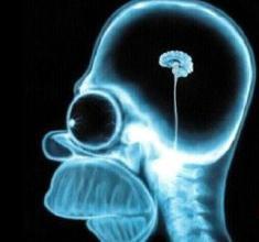 脑萎缩早期表现为注意力不集中